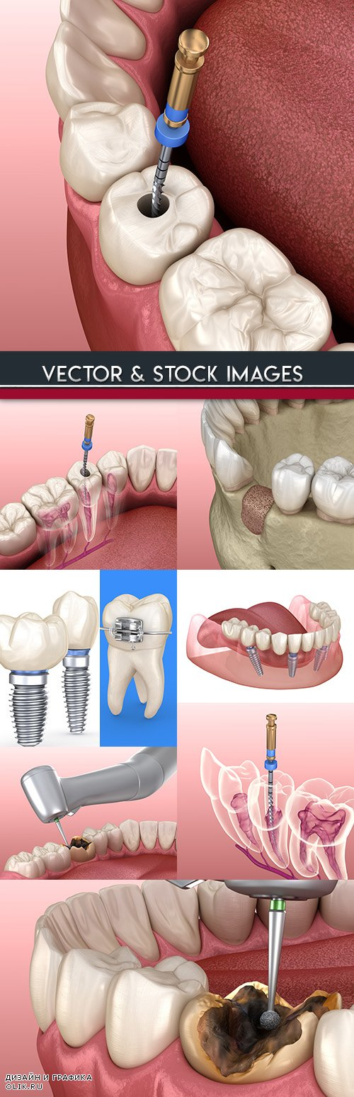 Treatment of tooth and removal nerve 3d illustration